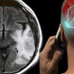 Studimi i ri, ja cilat janë rreziqet nga përdorimi i celularit (Duhet t'i dini)