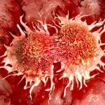 Studimi zbulon të dhëna dramatike, ja pse sëmuren kaq shumë njerëz me kancer