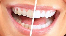 6 mënyra të thjeshta se si të zbardhni dhëmbët vetë në shtëpi